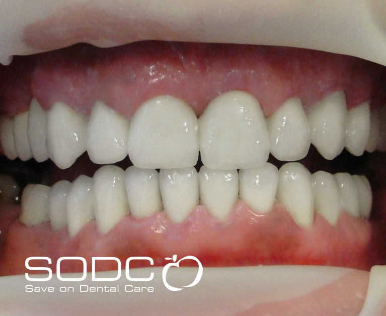 Metal free E-max pressed ceramic crowns and veneers. after