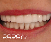 Fixed denture with implants before