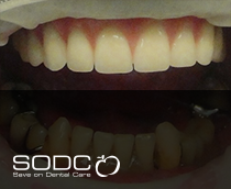 Fixed denture with implants after