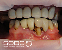 Dental implants, fixed denture after