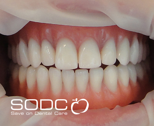 Implant retained denture after