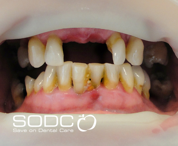 Implant retained denture before