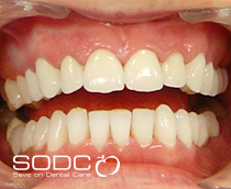 Tooth coloured filling and Opalescence tooth whitening before