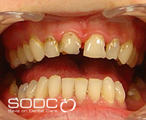 Tooth coloured filling and Opalescence tooth whitening after