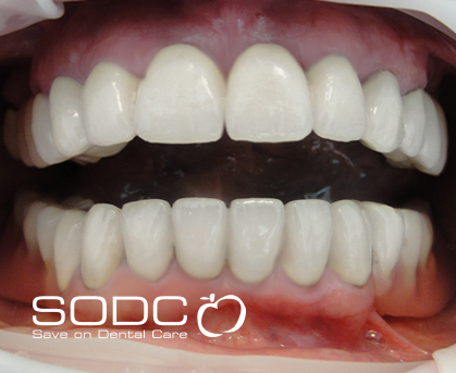 Metal free E-max pressed ceramic crown and bridge, and whitening. after
