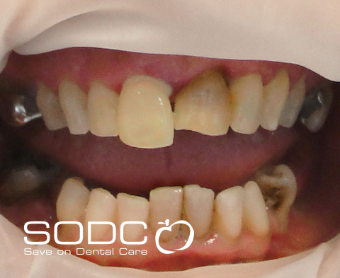 Metal free E-max pressed ceramic crown and bridge, and whitening. before
