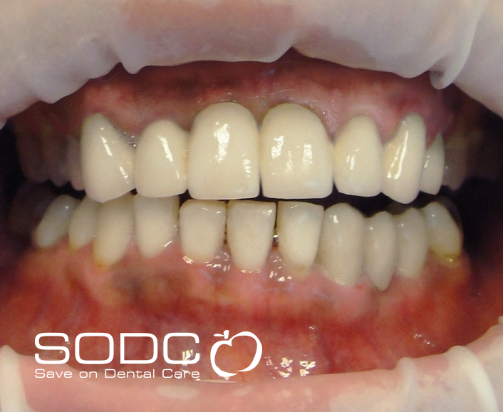 Porcelain bonded crown and whitening. before