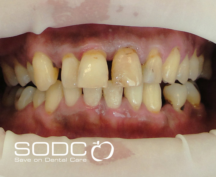 Porcelain bonded crown and whitening. after