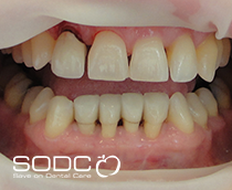 Metal free E-max pressed ceramic crowns and veneers after