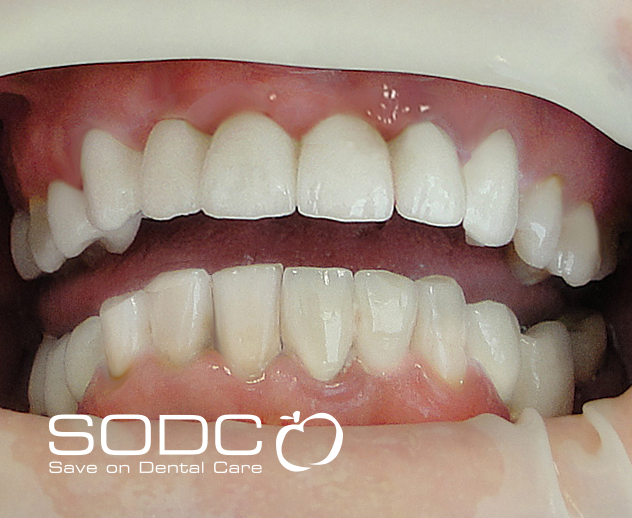 Porcelain bridge and tooth whitening. after