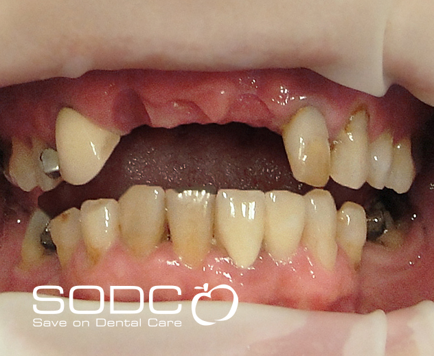 Porcelain bridge and tooth whitening. before
