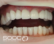 Metal free E-max pressed ceramic veneers whitening after