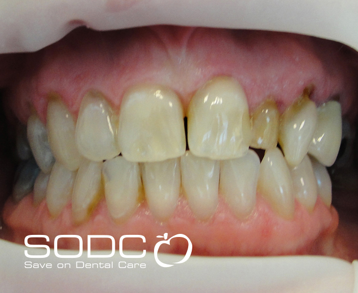 Porcelain crown and tooth whitneing. after